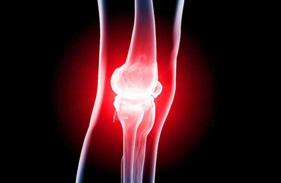 dolori alle ginocchia